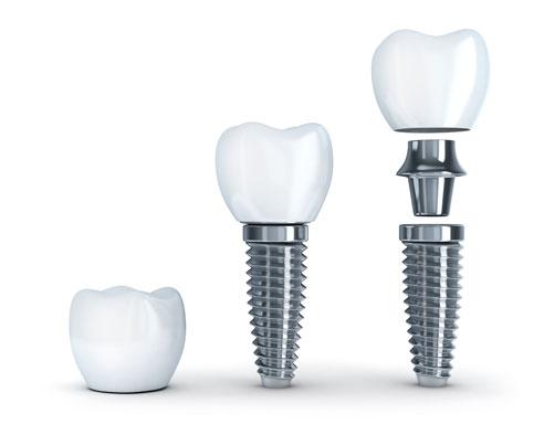 Tratamiento de implantes dentales