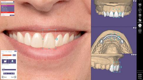 Pantalla ejemplo diseño digital de la sonrisa con exocad