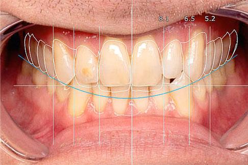 Diseño digital de la sonrisa con Exocad