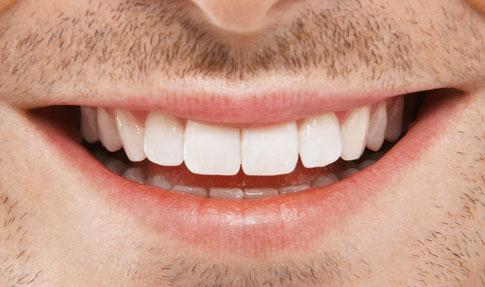 Resultado Final diseño Digital Sonrisa