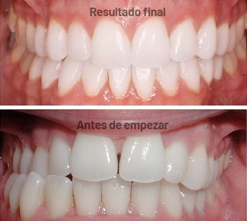 Resultado final tratamiento ortodoncia invisible invisalign