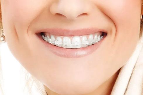 Ortodoncia con brackets esteticos