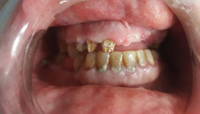 Foto antes del tratamiento de prótesis fija sobre implantes