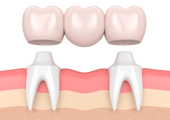 prótesis dental fija sobre puente