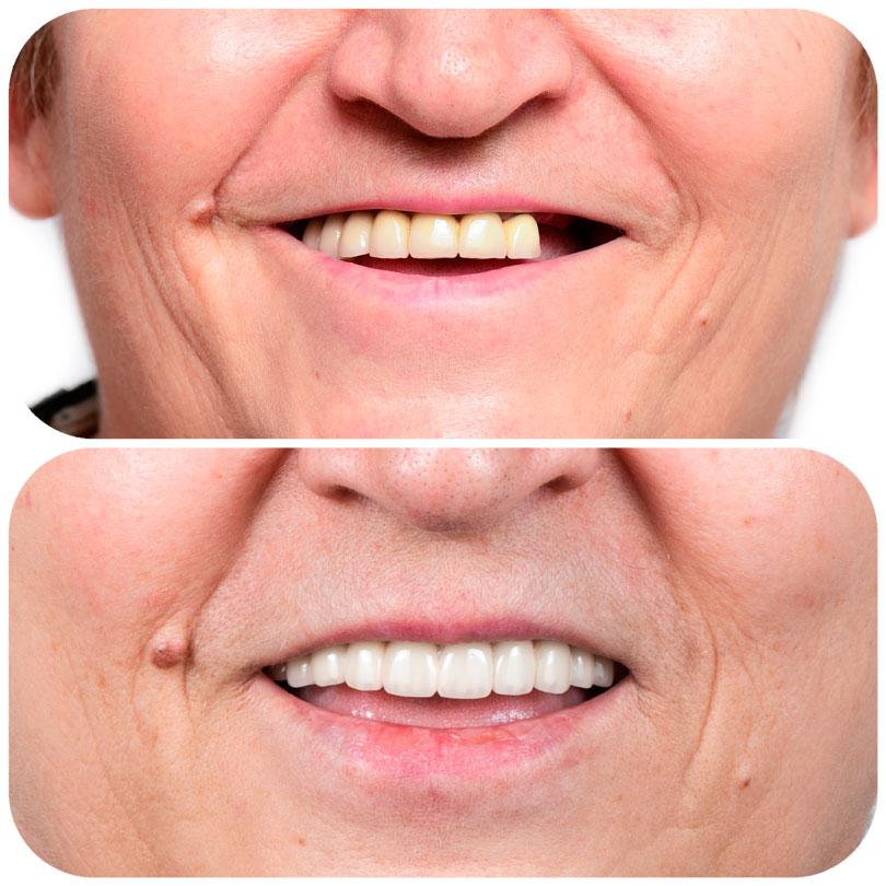 Foto comparativa antes y después del tratamniento de prótesis fija con implantes
